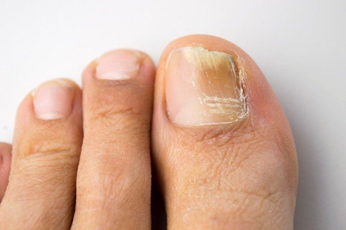Photo of How To Treat Toenail Fungus With Oregano Oil